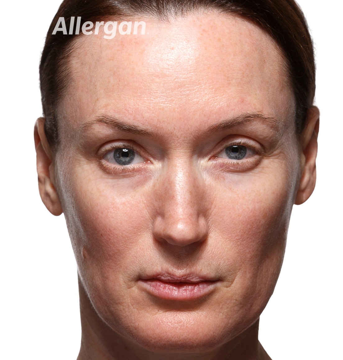 Juvederm | Caucasian female model Before